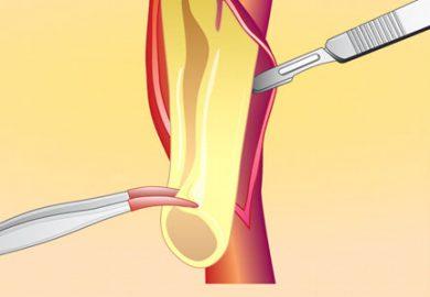 Carotid Surgery