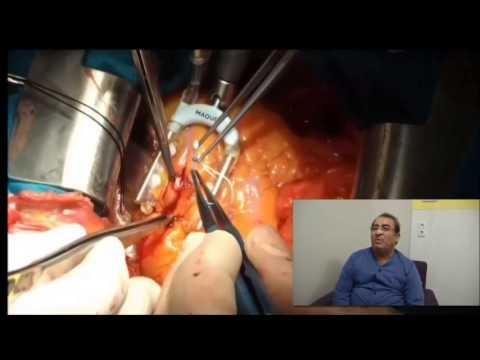Çalışan Kalpte Bypass 1 – Op.Dr. Mahmut Akyıldız